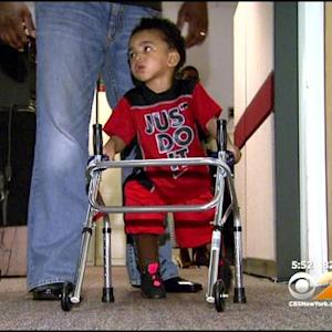 2-Year-Old NJ Boy Takes First Steps On New Prosthetics
