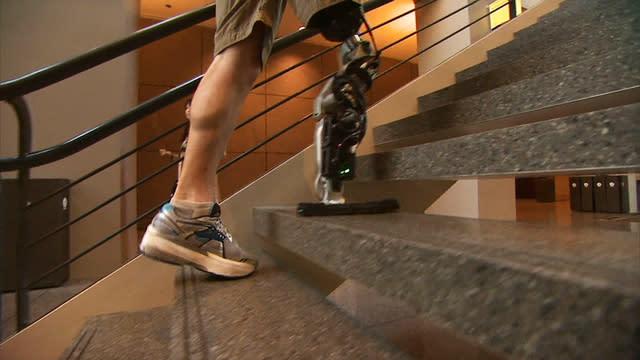Tonight: Amputee controls bionic leg with brainwaves