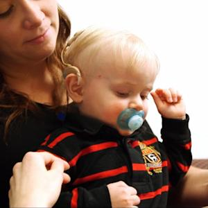 Deaf Toddler's Journey with Experimental Brainstem Device