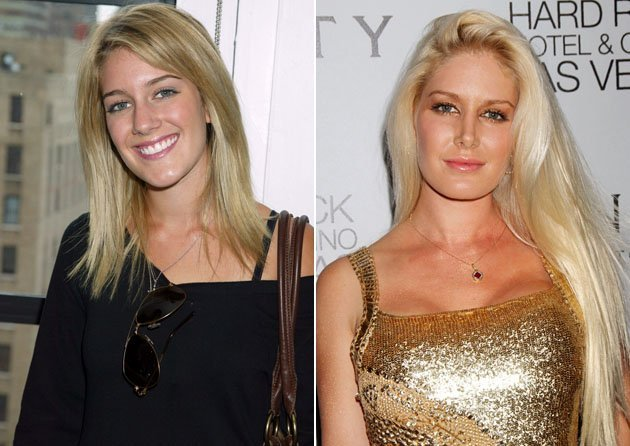 Heidi Montag before and after her ten cosmetic procedures
