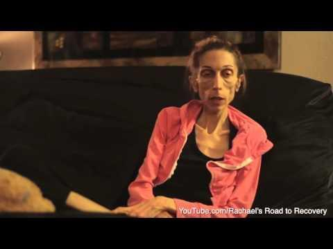 Woman with Anorexia Makes Public Appeal to Help Save Her Life
