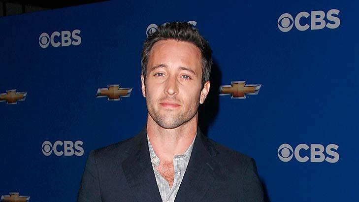 AlexO Loughlin CBA Upfronts