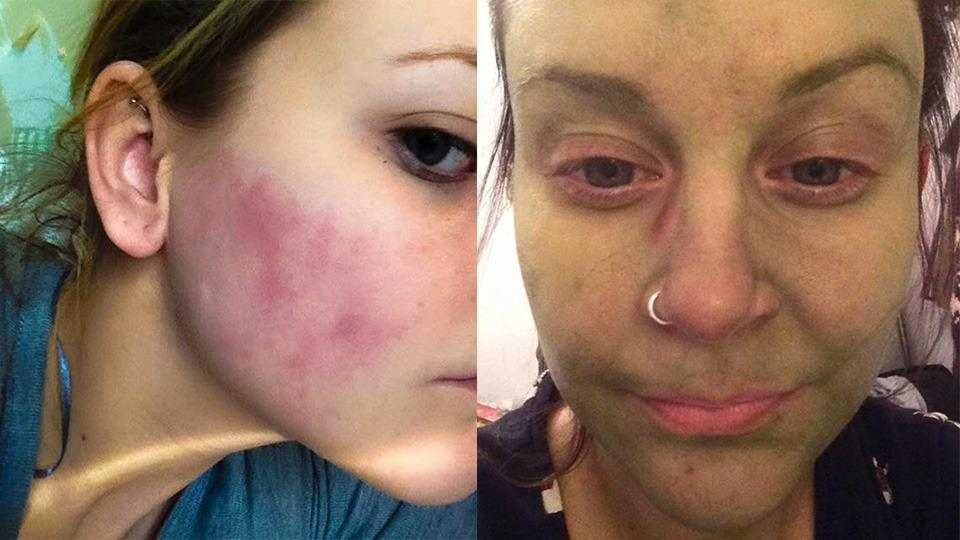 British woman claims St. Tropez tanning lotion turned her skin green