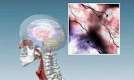 Revolutionary New Treatment For Parkinson's