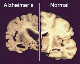New Alzheimer's drug studies offer patients hope