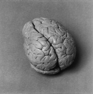 Identity of Famous 19th-Century Brain Discovered