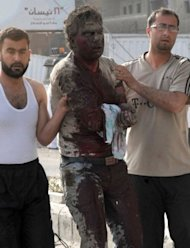A picture from the Syrian Arab News Agency shows a wounded man being assisted at the site of twin blasts in Damascus