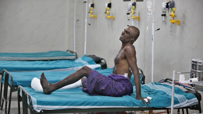 K. Arjunnan, injured with burns on his legs and hands grimaces in pain as his relative sleeps under the bed at a government run hospital in Madurai, about 460 kilometers (285 miles) southwest of Chennai, India, Thursday, Sept. 6, 2012. A massive blaze raged for hours at a fireworks factory in southern India, killing at least 40 workers and injuring 60 Wednesday, police said. Large amounts of firecrackers and raw materials had been stored in the Om Siva Shakti factory with major Hindu festivals weeks away. (AP Photo/Aijaz Rahi)