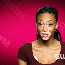 Inspiring 'Top Model' Contender has Skin Disorder