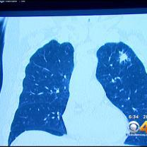 CT Scans Improving Outlook For Patients At Risk Of Lung Cancer