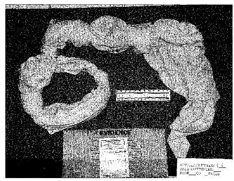 This undated photo released Tuesday, June 4, 2013 by the U.S. Army shows a noose Pfc. Bradley Manning made from a bedsheet while he was being detained in Kuwait shortly after his arrest in May 2010.  The photo was presented as evidence at a hearing in December regarding Manning's confinement at a Marine Corps base in Quantico, Va., to show why jailers there considered him a suicide threat. Manning is on trial for giving hundreds of thousands of documents to the secret-spilling website WikiLeaks. (AP Photo/U.S. Army)