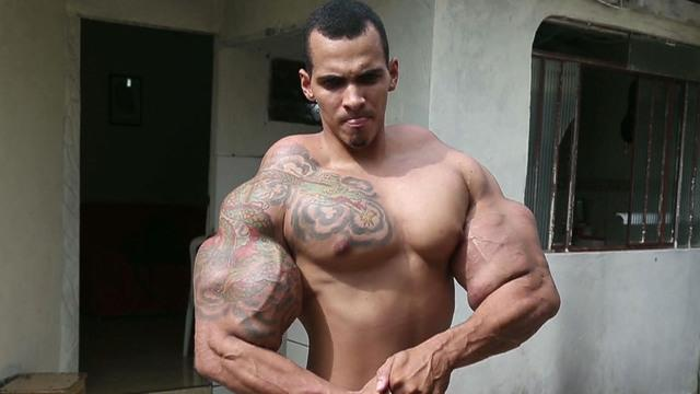 Bodybuilder nearly dies after bicep injections