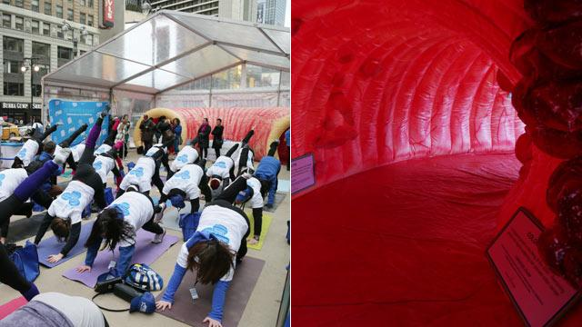 Giant Colon Raises Cancer Awareness