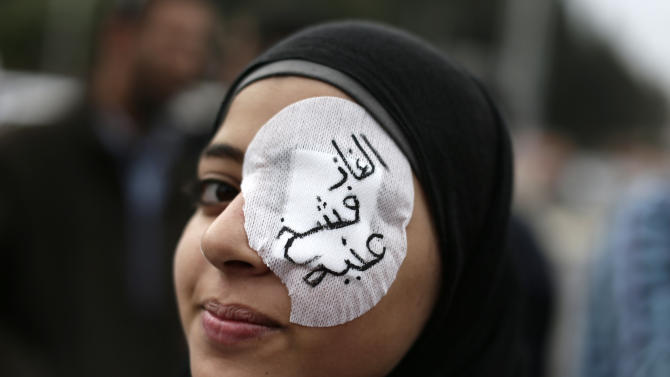"An Egyptian protester wears an eye patch during an anti Muslim Brotherhood demonstration outside the presidential palace, in Cairo, Egypt, Wednesday, Dec. 5, 2012. Supporters of Morsi and opponents clashed outside the presidential palace. Wednesday's clashes began when thousands of Islamist supporters of Morsi descended on the area around the palace where some 300 of his opponents were staging a sit-in. Arabic on the eye patch reads, ""tear gas damaged my eye."" (AP Photo/Hassan Ammar)"