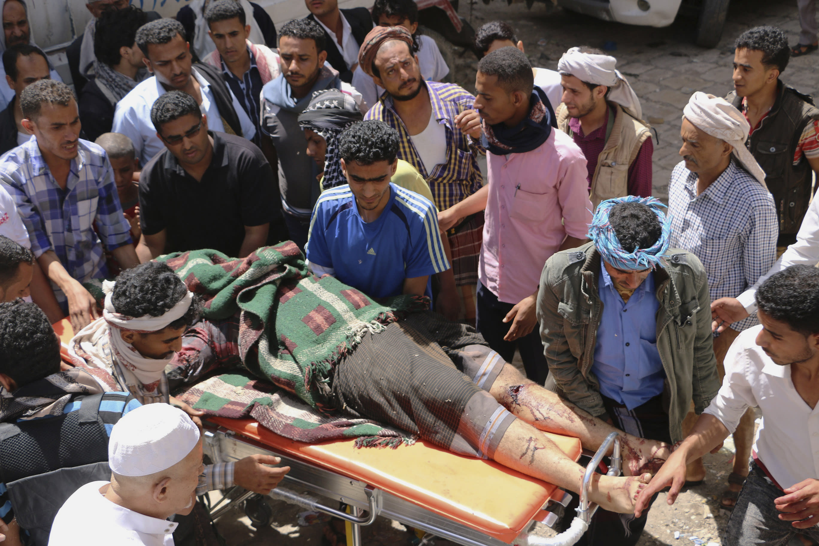Fighting rages on in Yemen, civilians killed by shelling