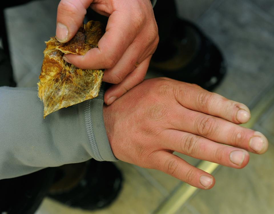 Ray Redington shows the effects of frostbite on his fingertips as he eats some dried fish during his rest in White Mountain, Alaska, during the Iditarod Trail Sled Dog Race on Tuesday, March 13, 2012. (AP Photo/Marc Lester, Anchorage Daily News )
