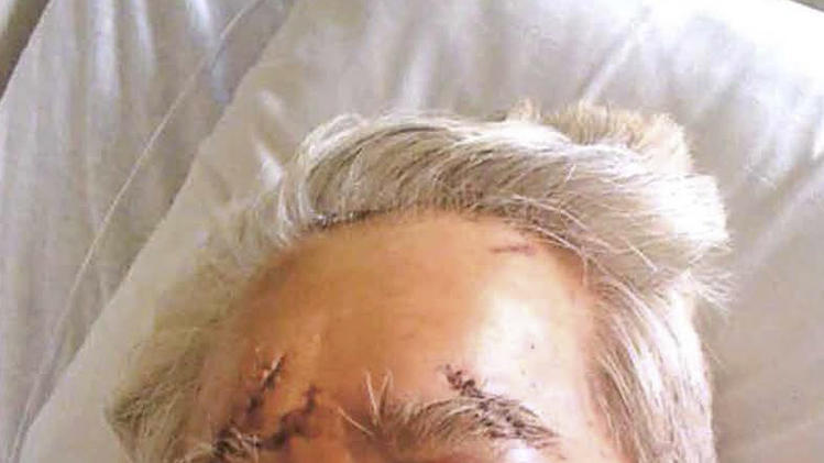 This May 27, 2010 photo provided by Goodsill Anderson Quinn & Stifel shows Calvin Kawamura of Hawaii in a Las Vegas hospital. The Hawaii man is suing a Las Vegas hotel and casino where he was beaten and robbed in 2010, claiming Main Street Station was negligent in not providing enough security in a long, dark hallway that leads to restrooms. Kawamura and his wife, Jeanie, of Aiea, filed the lawsuit last week in federal court. (AP Photo/Goodsill Anderson Quinn & Stifel)