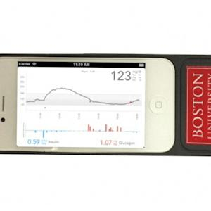 MANAGING DIABETES WITH A BIONIC PANCREAS