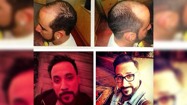 BSB A.J. McLean Reveals Hair Transplant