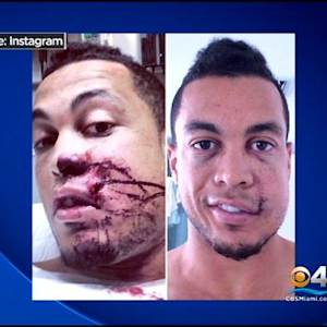 Stanton Speaks Out For First Time Since Season-Ending Injury
