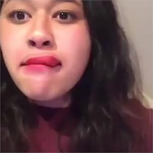 Kylie Jenner Lip Challenge GONE WRONG | What's Trending Now