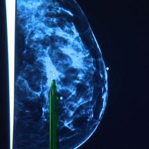 Scientists develop new classifications for breast cancer