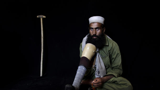 In this Friday, July 27, 2012, photo, Pakistani Gani Abdul Rahman, 32, who was injured on July, 17, 2007, by a bomb blast in Islamabad, poses for a picture in Islamabad, Pakistan. To many victims of Taliban violence, the idea of negotiating with people responsible for so much human pain is abhorrent. Their voices, however, are rarely heard in Pakistan, a country where people have long been conflicted about whether the Taliban are enemies bent on destroying the state or fellow Muslims who should be welcomed back into the fold after years of fighting.(AP Photo/Muhammed Muheisen)