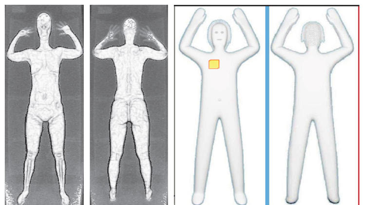 FILE - This combination of undated file photos provided by the Transportation Security Administration show images from airport body scans using backscatter advanced image X-ray technology, left, and newer millimeter wave technology, right, that produces a cartoon-like outline. Frustration is growing among small airport managers outraged that the newer millimeter wave scanners, that produces a cartoon-like outline of the body, are being hauled away and sent to bigger facilities that haven't yet upgraded older machines criticized for showing too much anatomy. (AP Photo/Transportation Security Administration, File)