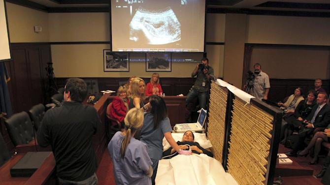 "A woman identified as ""Lorena"" by anti-abortion advocates during an ultrasound exhibition in the Idaho Capitol undergoes an abdominal ultrasound on Wednesday, March 21, 2012 in Boise. The exhibition was held by proponents of a bill to require an ultrasound before an abortion that's passed the Idaho Senate 23-12. Foes of the measure say it's an invasion of privacy. (AP Photo/John Miller)"