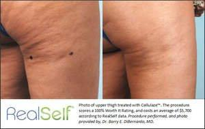 Cellulaze: 10 Crucial Things to Know About New FDA-Approved Cellulite Treatment