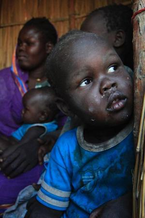 A young South Sudanese refugee looks on as he waits …