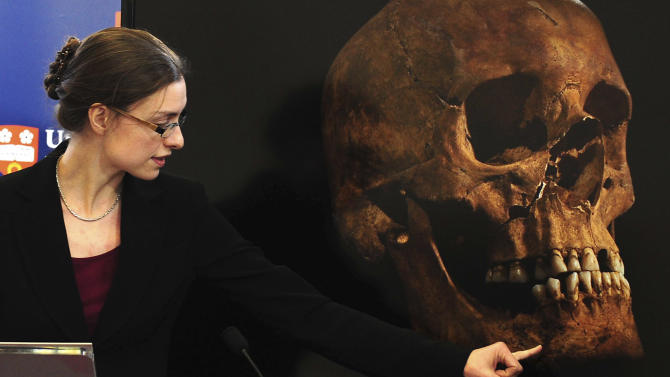 """Jo Appleby, a lecturer in Human Bioarchaeology, at University of Leicester, School of Archaeology and Ancient History, who led the exhumation of the remains found during a dig at a Leicester car park, speaks at the university Monday Feb. 4, 2013. Tests have established that a skeleton found , including this skull, are """"beyond reasonable doubt"""" the long lost remains of England's King Richard III, missing for 500 years.(AP Photo/Rui Vieira, PA)  UNITED KINGDOM OUT - NO SALES - NO ARCHIVES"""