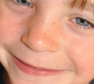 How my son's freckles made me love my own