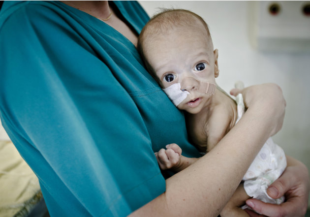 Baby Andrei, eight-month-old, son of Roma underage parents clenches  his fist from the arms of a nurse in the intensive care unit of the Marie Curie children's hospital, on March 27, 2012, in Buchares