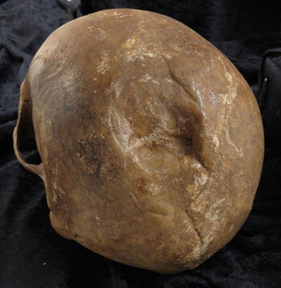 Medieval Skulls Reveal Long-Term Risk of Brain Injuries