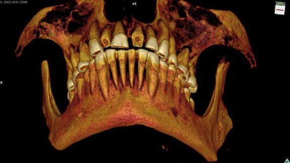 Mummy with Mouthful of Cavities Discovered