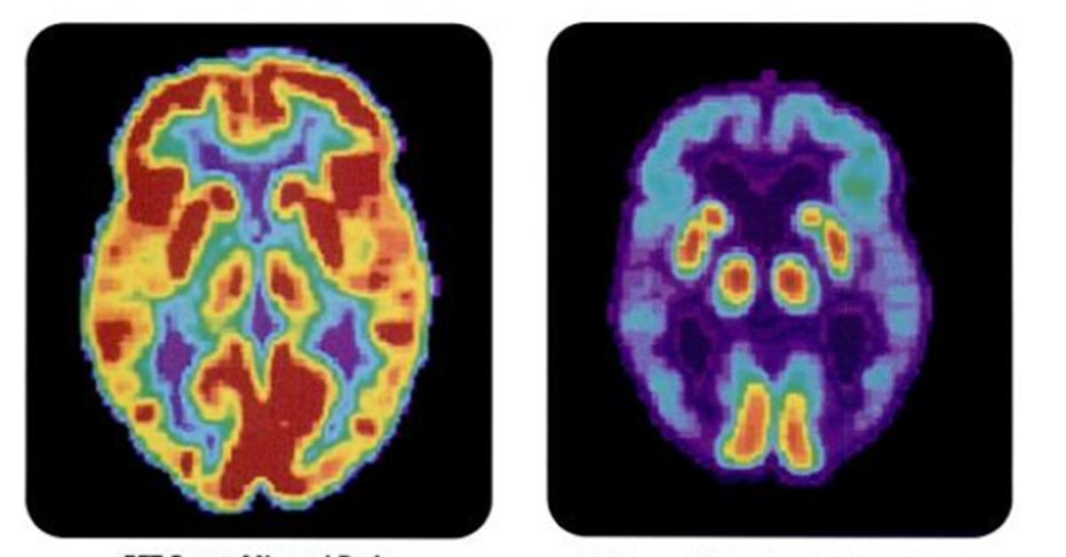 BREAKING: Alzheimer's Mystery Finally Solved?