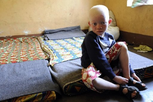 Ein Albino-Mdchen ist im ostafrikanischen Burundi von bewaffneten Mnnern entfhrt, ermordet und zerteilt worden. Das Archivfoto zeigt ein anderes Albino-Mdchen in Burundi