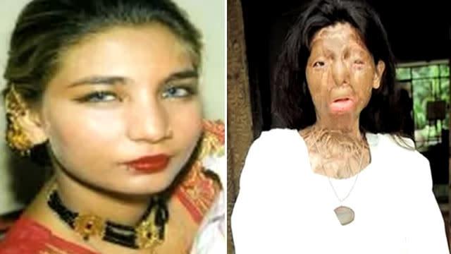 Acid Attack Victim Fakhra Yunus Commits Suicide