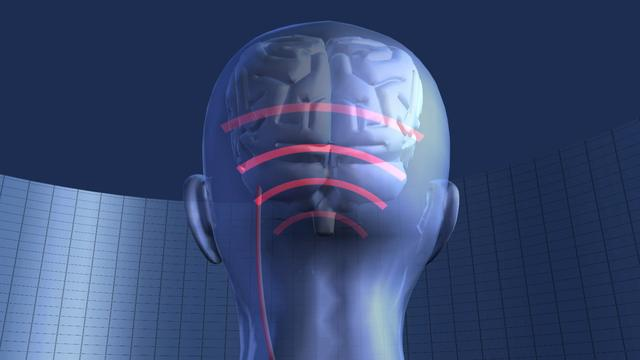 Migraine study says nerve stimulation could bring relief