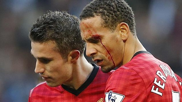 Manchester United's Rio Ferdinand bleeds after being struck by a missile against Manchester City