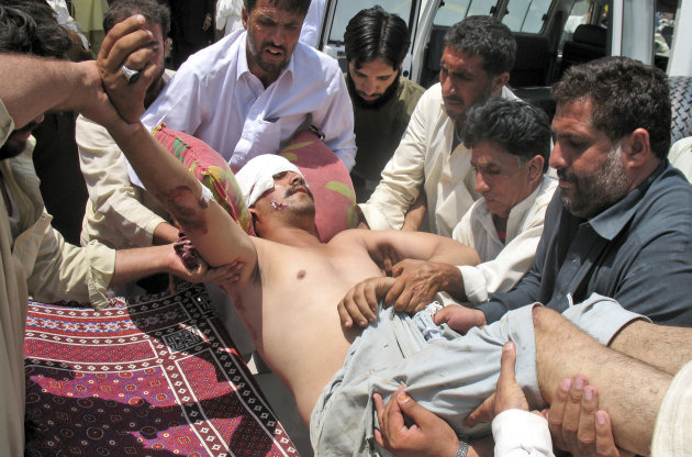 A man who was injured in a roadside bomb in Kohat district outside Orakzai, is brought to a hospital in Peshawar, Pakistan, Wednesday, July 18, 2012. A minibus carrying minority Shiite Muslims hit an anti-tank land mine in northwestern Pakistan on Wednesday, killing several of them in what police described as the country&#39;s latest sectarian attack. (AP Photo/Mohammad Zubair)