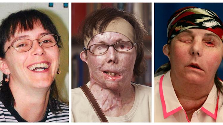 This photo combination shows Carmen Blandin Tarleton, who suffered chemical burns over 80 percent of her body when her estranged husband doused her with lye in June 2007. The undated photo at left, provided by the Blandin family, shows Tarleton before the attack. The center photo, provided by Brigham and Women's Hospital in Boston, shows Tarleton in July 2011. The photo at right shows Tarleton on Wednesday, May 1, 2013, after her successful face transplant in February. (AP Photo)