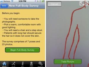 Use Your Naked Photos to Track Skin Cancer