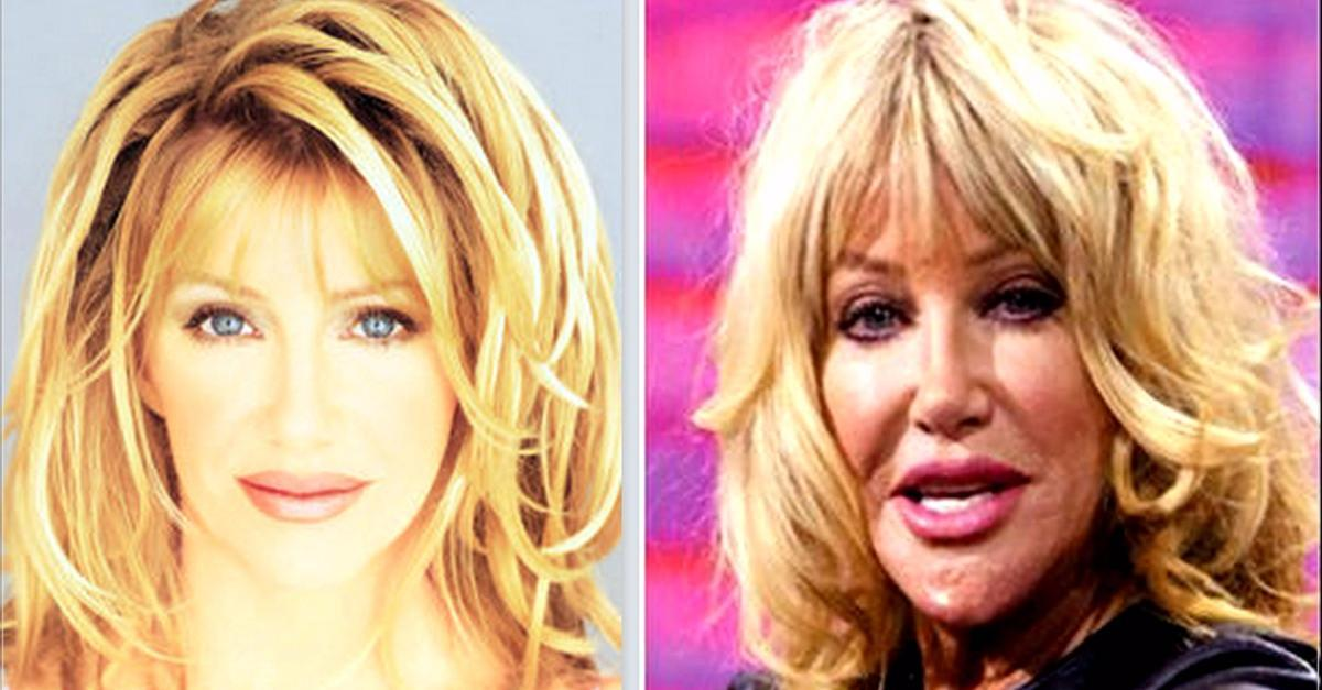 50 Horrifying Cases of Celeb Plastic Surgery