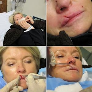 Martha Stewart has her lip stitched up after an altercation with her beloved dog Francesca, Jan. 2011 -- Betsy Perreten/Martha Stewart
