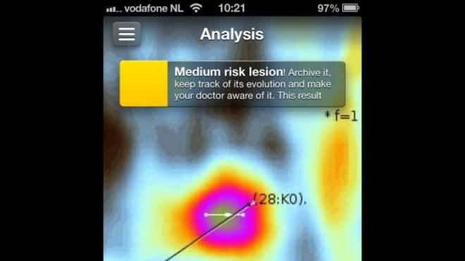 The result screen that appears on your phone after being diagnosed by the SkinVision app.