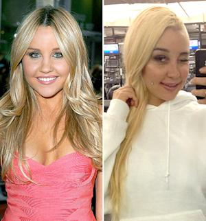 "Amanda Bynes Says She Got a Nose Job to Fix ""Webbing in Between"" Her Eyes"