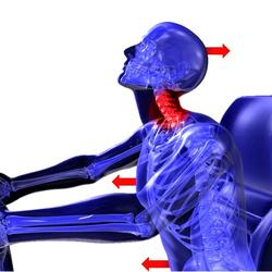 The Role of Biomechanics in Motor Vehicle Accident Litigation