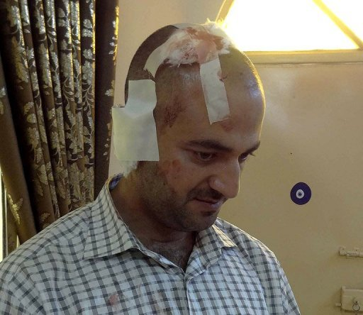 AFP journalist Marwan Ibrahim shows the bandages on his head after he was wounded while reporting on bombings in the Iraqi city of Kirkuk. Ibrahim's right shoulder, right ear, head and both knees were injured in the blast